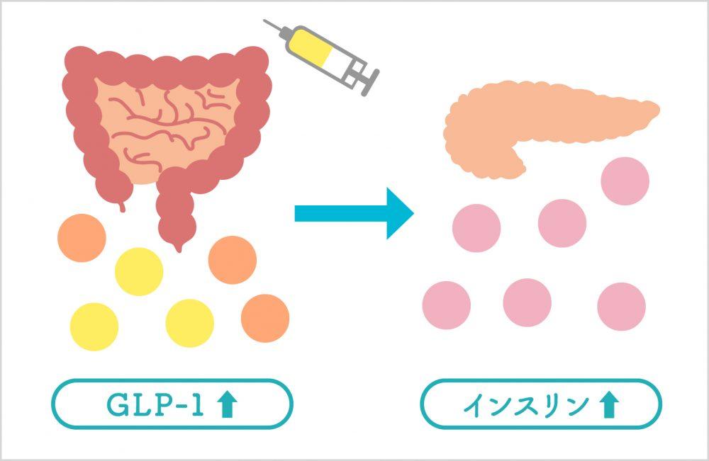 尿病の新薬「GLP-1受容体作動薬」 ~ 食後血糖の変動を抑制する注射薬 ~